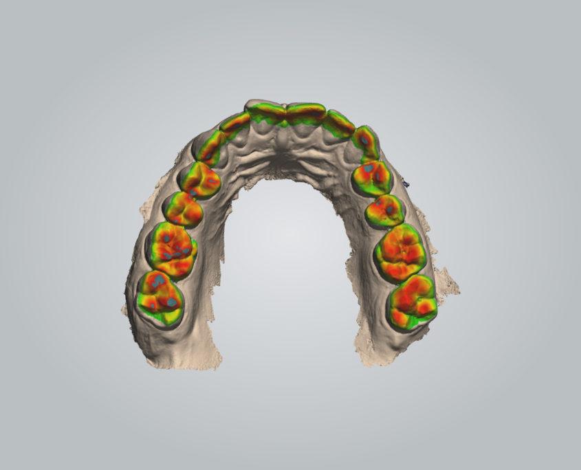 3D Scanner fur Zähne und Gebiss | Whitesonic
