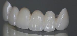 Ein Beispiel für Zahnersatz.