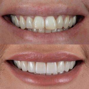 """""""Gemachte"""" Zähne im Vergleich zu davor."""