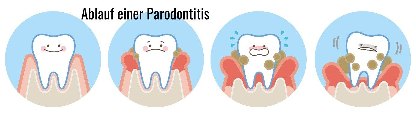 Der Ablauf einer Parodontitis bildlich dargestellt.
