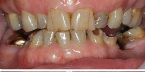 Stark zerstörte Zähne aufgrund von Bruxismus.