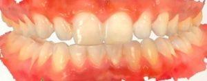 Unkompliziert zum digitalen Zahnabdruck in Aachen am Klenkes!